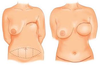 Reconstruction mammaire par lambeau de grand droit de l'abdomen à Tours