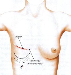 Reconstruction mammaire par prothèse à Tours